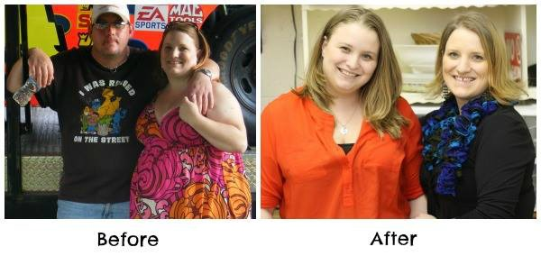 bariatric-surgery-before-and-after